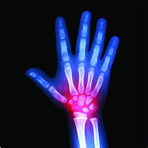 Arthritic_Hand