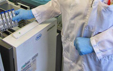 Loading fCAL turbo faecal calprotectin tests onto the cobas 6000