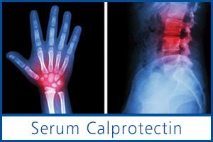 Serum-Calprotectin